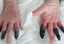 amputan tres dedos